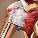 Τενοντίτιδα του ώμου (περιαρθρίτιδα)